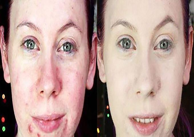 فاندیشن یا زیرساز آرایش