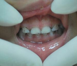قطره آهن و تغییر رنگ دندان کودک