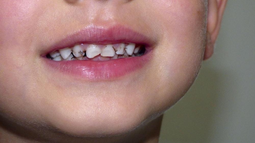 قطره آهن لیپوزوفر دندان را سیاه میکند