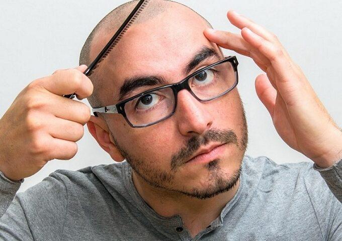 ماینوکسیدیل چیست + ماینوکسیدیل و ریزش مو
