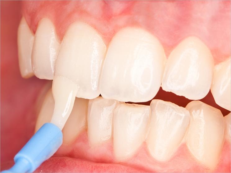 وارنیش فلوراید یا وارنیش دندان