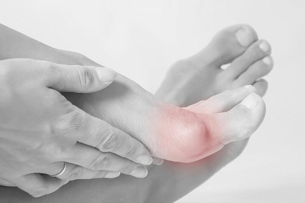 آیا انحراف انگشت شست پا درمانی دارد؟