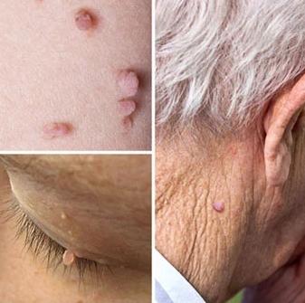 دلایل ایجاد برجستگی روی پوست