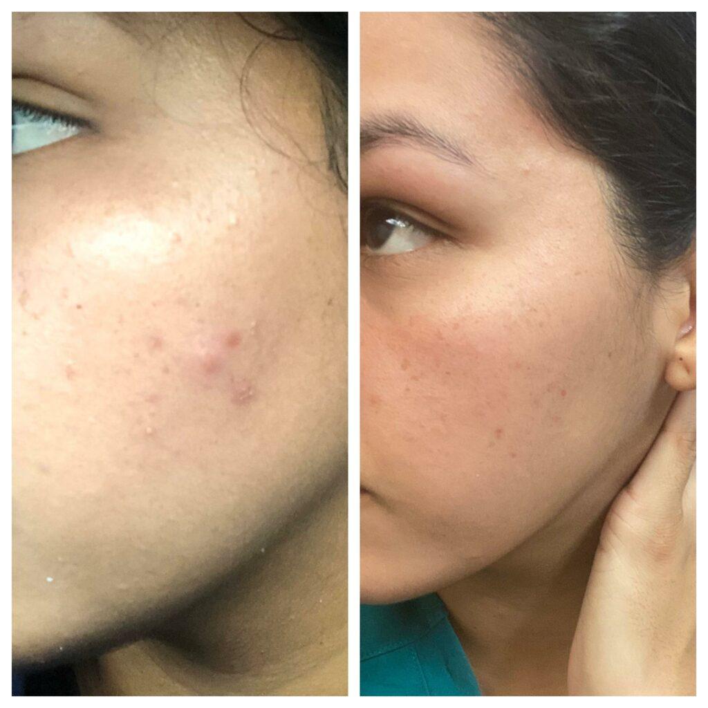 نحوه استفاده از محلول کلیندامایسین برای جوش صورت