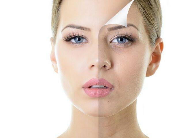کرم لایه برداری پوست چیست وآیا لایه برداری بی ضرر است؟