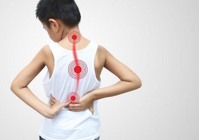 بیماری ستون فقرات اسکولیوز چیست و جراحی آن چگونه است؟