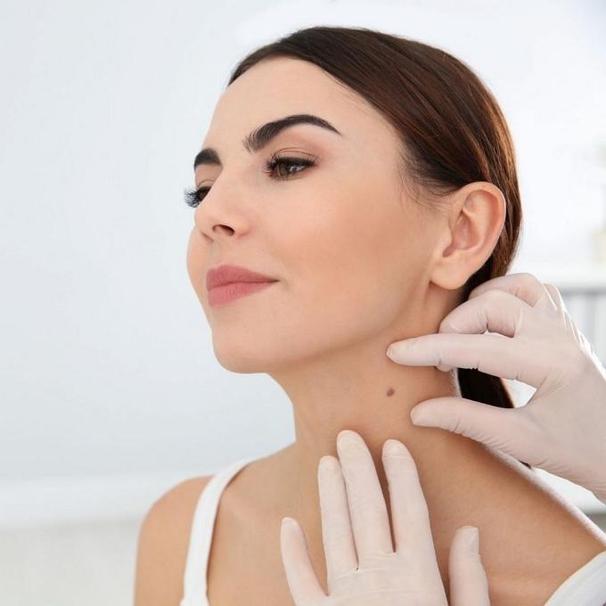 انواع زوائد و برجستگی های پوستی+علت و درمان توده های پوستی