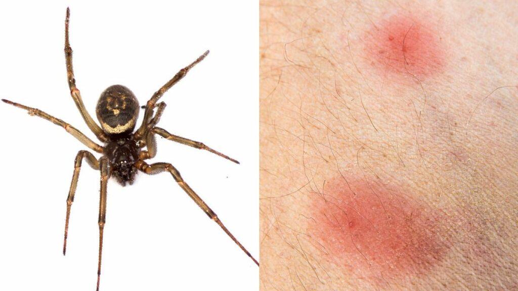 گزش عنکبوت