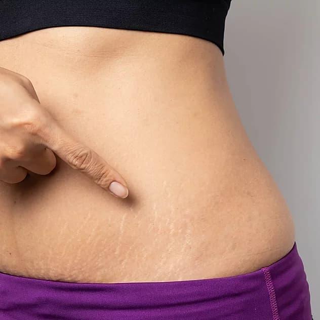 افزایش وزن ناگهانی بدن