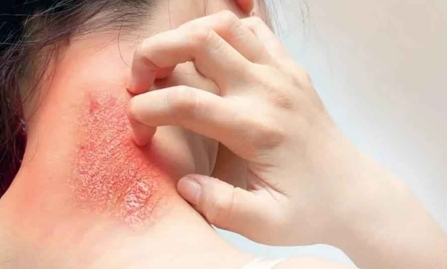 انواع عفونت های قارچی پوست