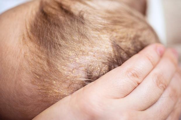 علت پوسته پوسته شدن سر نوزاد چیست؟