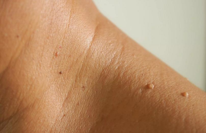 برجستگی یا زائده پوستی چیست