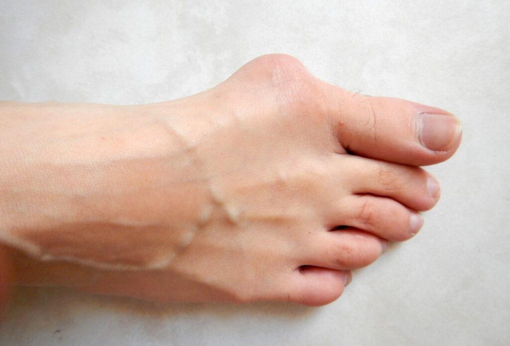 پد لاانگشتی برای انحراف انگشت شست پا