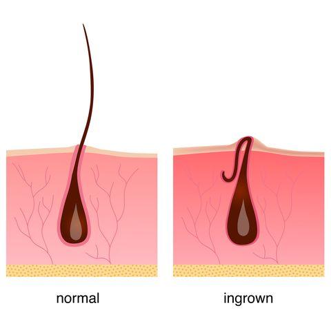 چرا بعد استفاده اپیلاتور موی زیر پوستی ایجاد میشود؟