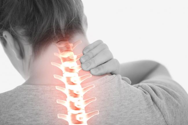 گردن درد حاد