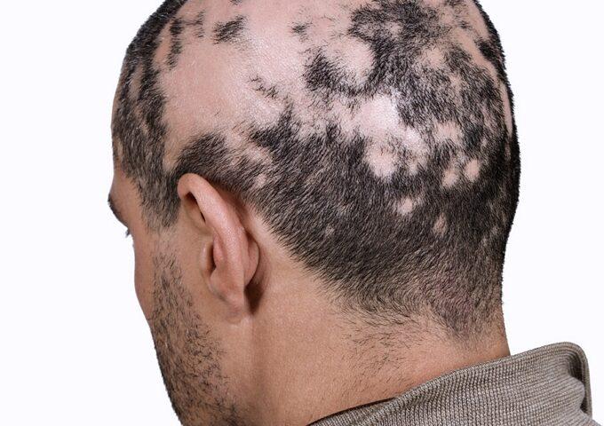 ریزش مو سکه ایی چیست و آیا این ریزش مو واگیردار است؟