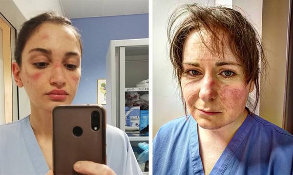 عوارض استفاده طولانی مدت از ماسک تنفسی صورت