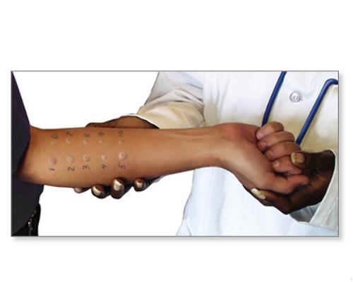 تشخیص حساسیت دارویی