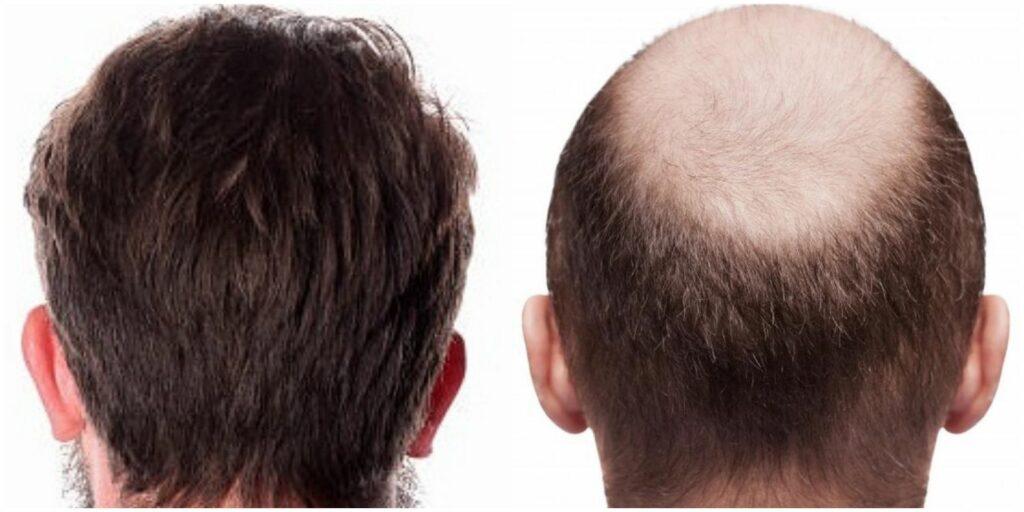 ریزش موها بعد از کاشت