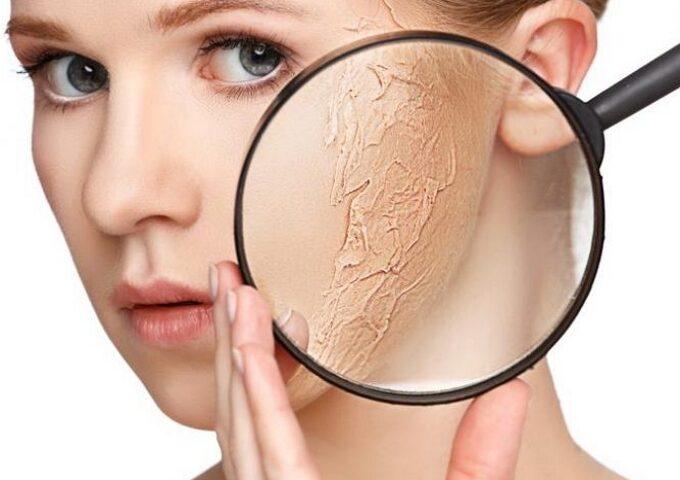 پوست دهیدراته چیست؟ علل این بیماری، راه های پیشگیری و درمان آن
