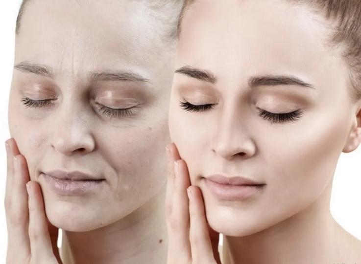علایم پوست دهیدراته یا کم آب