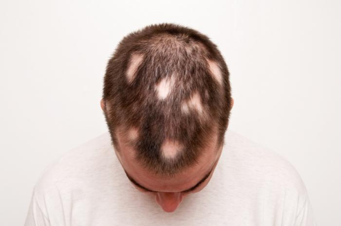 ریزش مو سکه ای یا آلوپسی چیست؟